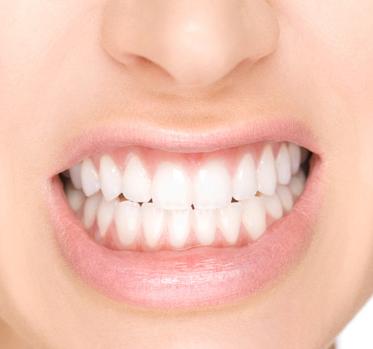 bruxismo dentista cunit