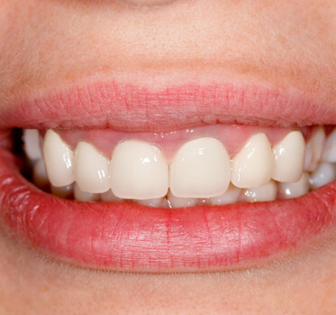 estetica-dental dentista cunit