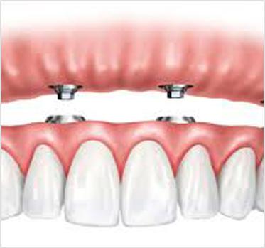 implante-dental dentista cunit