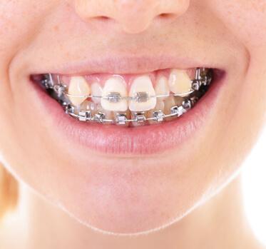 ortodoncia-brackets dentista cunit