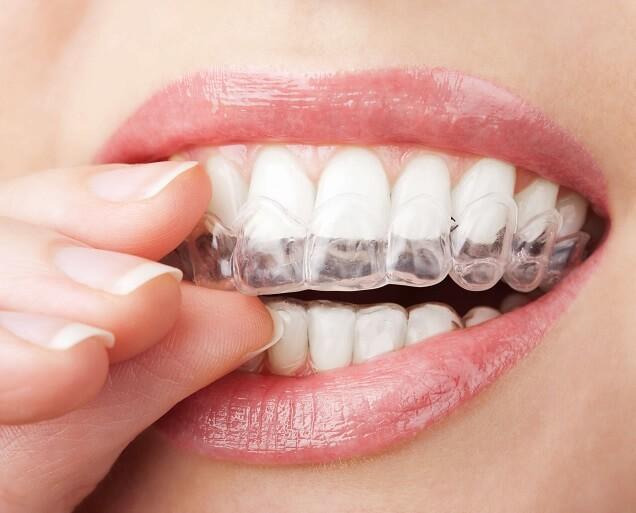 Ortodoncia invisible – Clínica Dental Rocabayera
