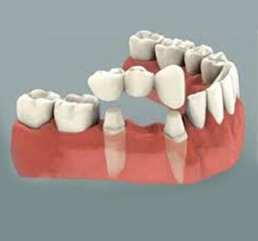 protesis-dental dentista cunit