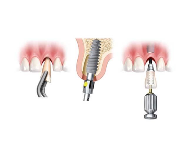 Dientes en un día – Clínica Dental Rocabayera