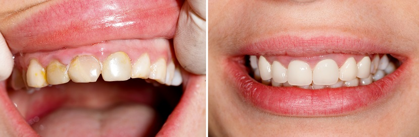 Before and after treatment dentista cunit